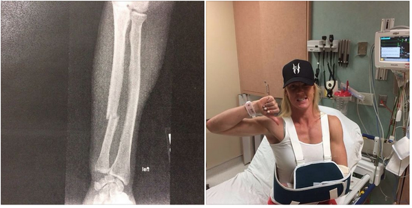 Holly Holm arm update: Bone plated, perfectly aligned