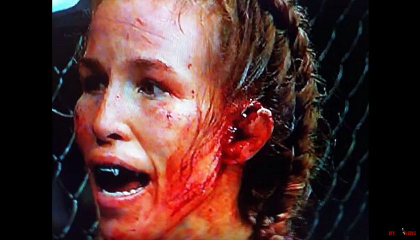 Eye Takes an Ear - Jessica Eye Literally Punches Leslie Smith's Ear Off at UFC 180
