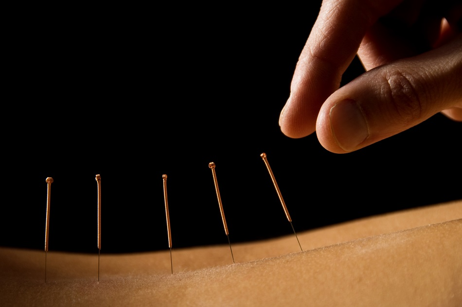 Acupuncture needle breaks off in UFC fighter's arm, sucked into muscle