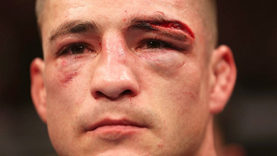 Diego Sanchez debuts at featherweight in Mexico