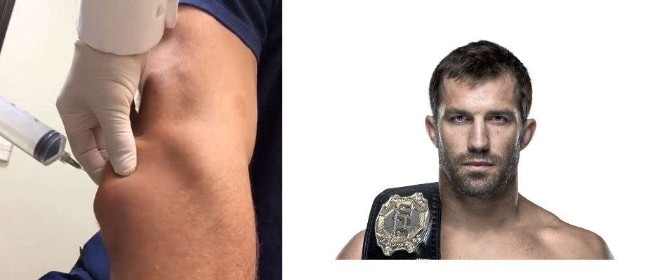 VIDEO:  UFC champ Luke Rockhold gets elbow drained