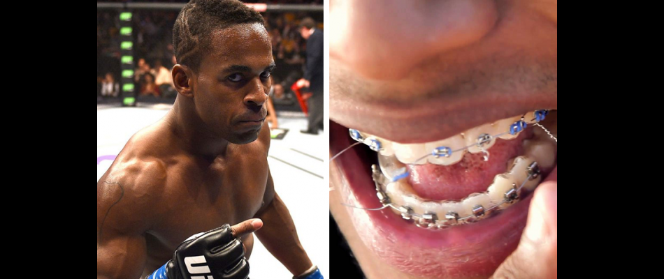 Lorenz Larkin teeth