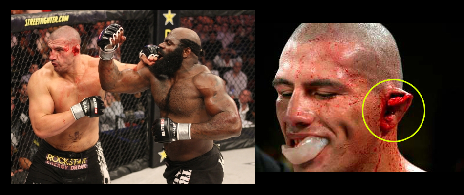 Kimbo Slice vs James Thompson rematch, Bellator 158 in London