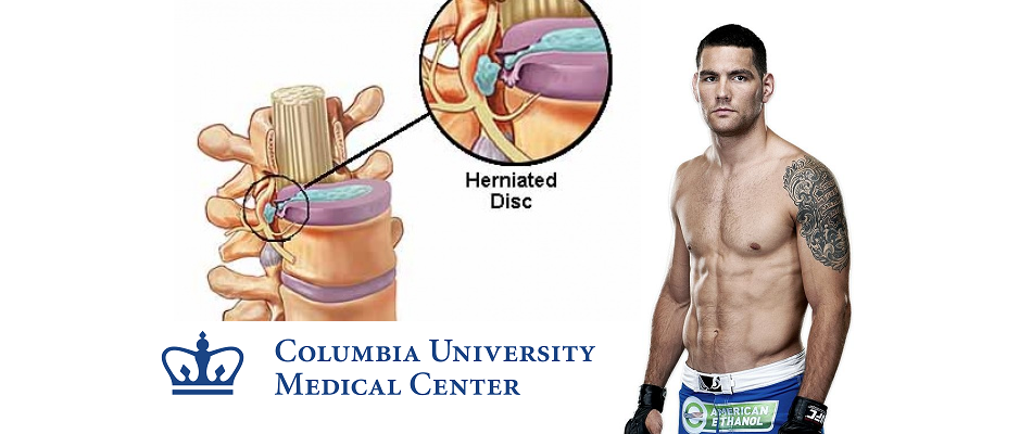 Weidman to have surgery on herniated discs in neck, Wednesday