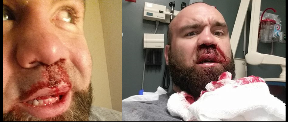 Bumps, bruises, and broken noses - Victory FC heavyweight champ Daniel Gallemore