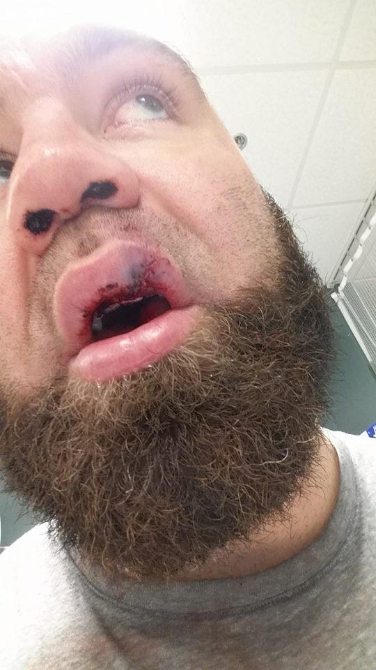 Daniel Gallemore - broken nose