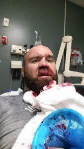 Daniel Gallemore receiving treatment for a broken nose.