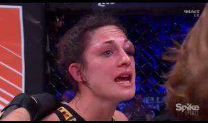 Brooke Mayo eye - Bellator 172