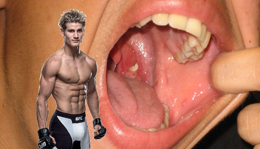 Sage Northcutt to have tonsils removed, sidelined until July
