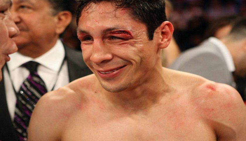 Boxer, Israel Vázquez, to lose right eye after surgery in coming months