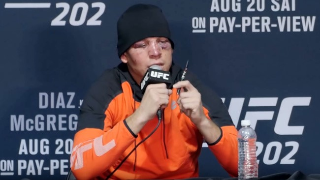 Nate Diaz Speaking about the benefits of Vaping CBD in a UFC conference.