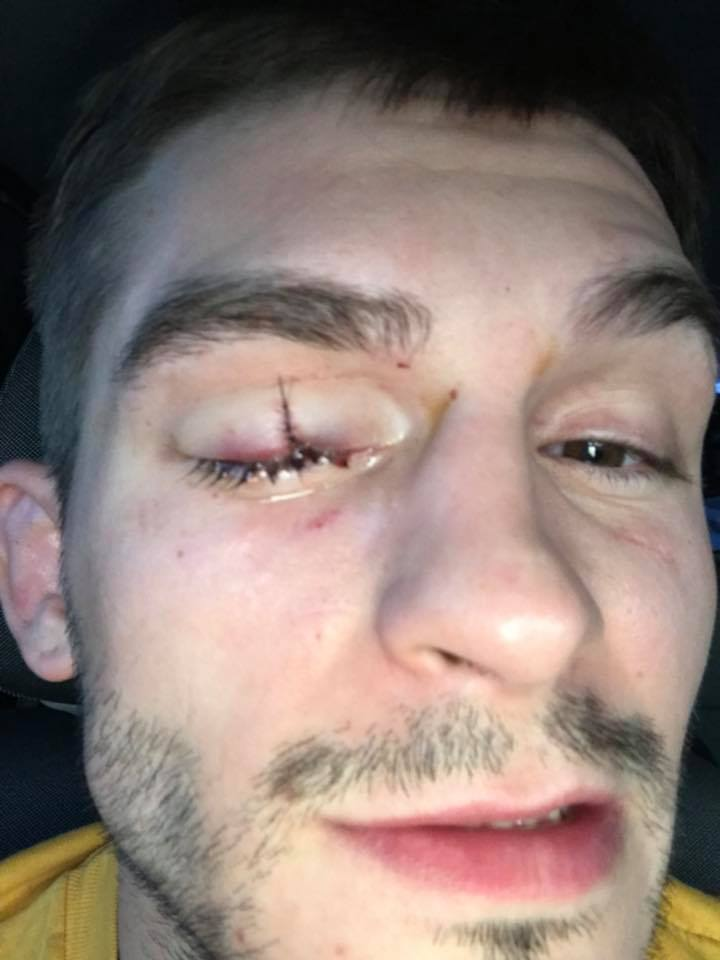 Johnny Case eye injury