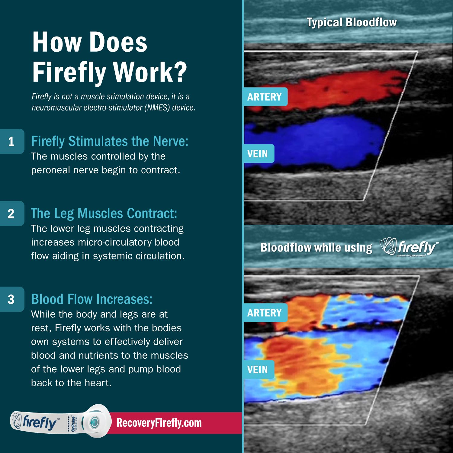 firefly, athlete recovery, blood flow