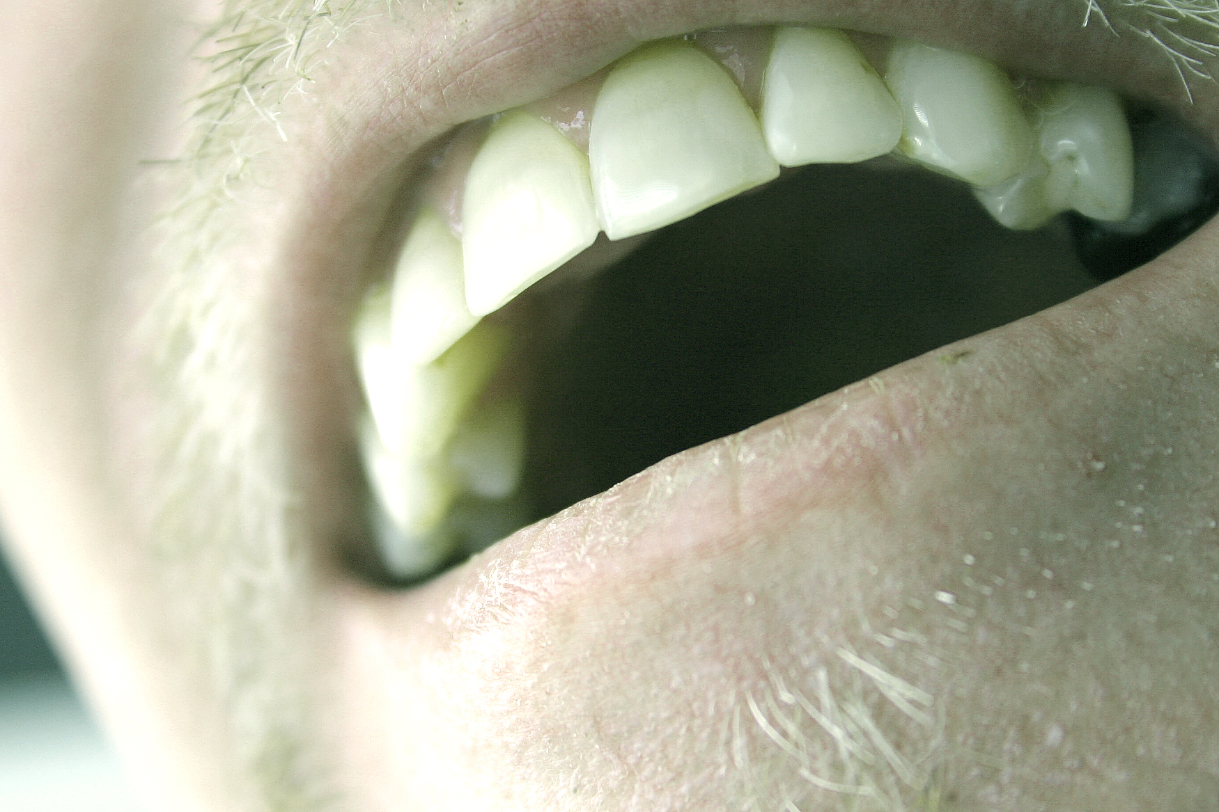 Your Teeth, And Their Crucial Impact On Performance