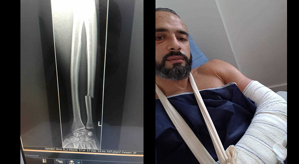 Tahar Hadbi sustained serious arm injury during Brave 12