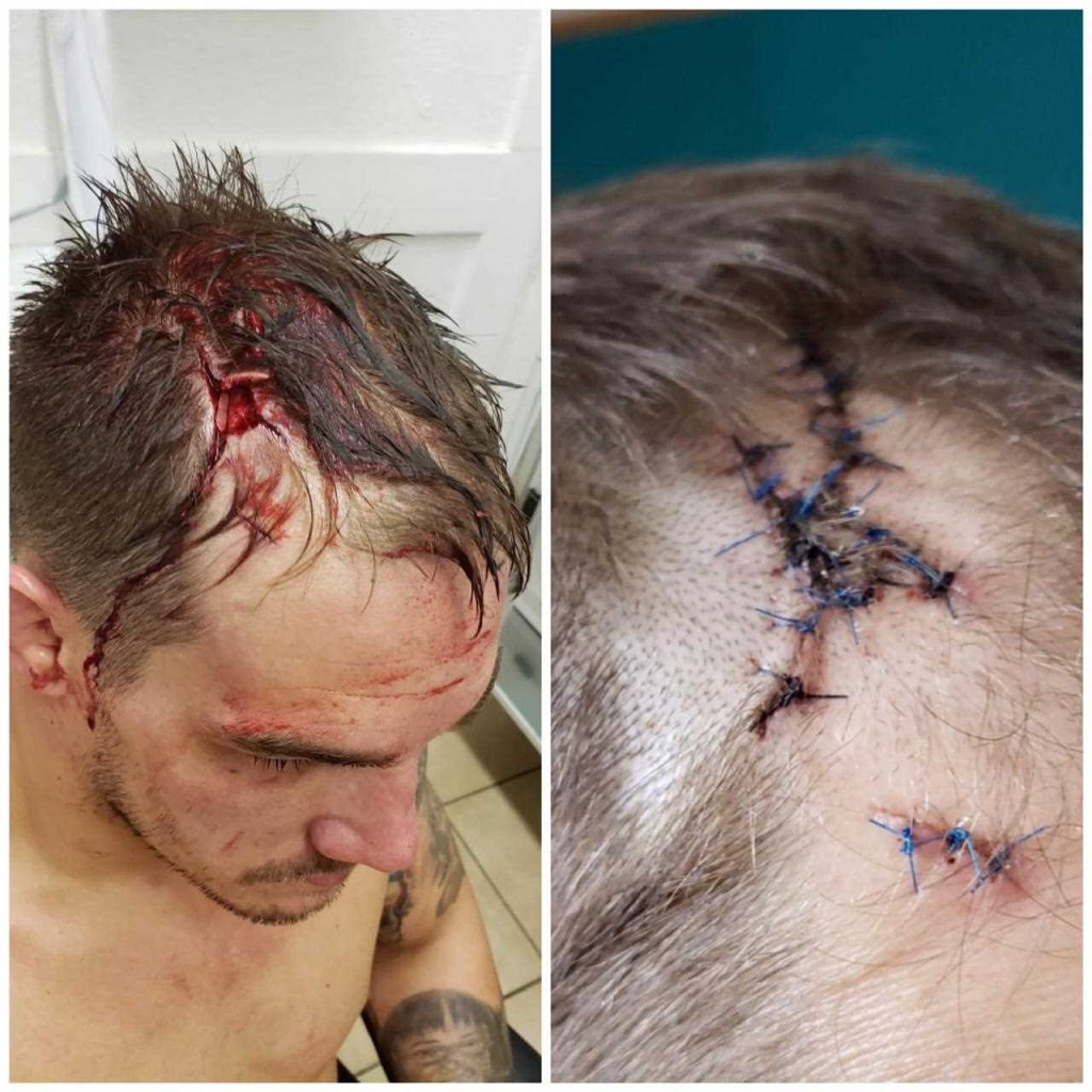 Adam Townsend reveals the horrifying cut from Brave 19