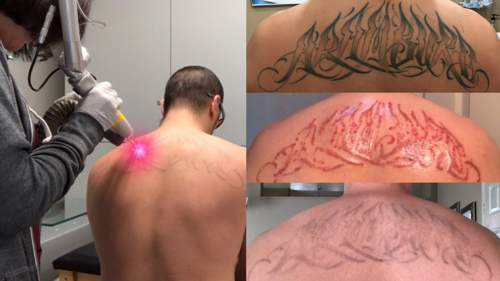How long does it take laser tattoo removal to heal before I can fight?