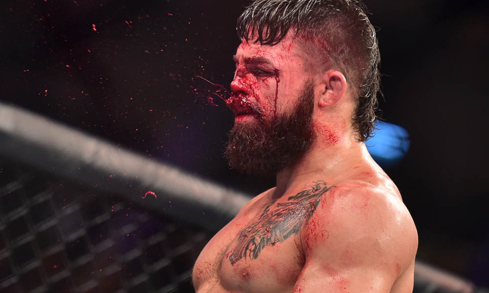 mma injuries, Mike Perry
