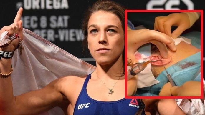Joanna Jedrzejczyk shares gruesome video of cauliflower ear surgery