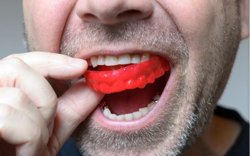 dental tips, mouthguard