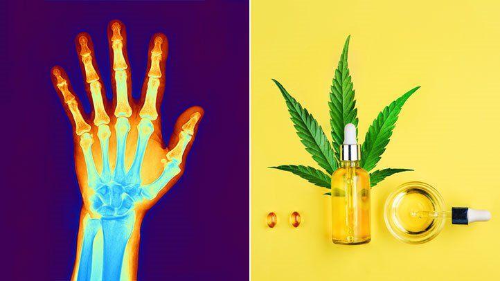 cbd, arthritis